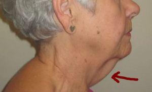 neck hair